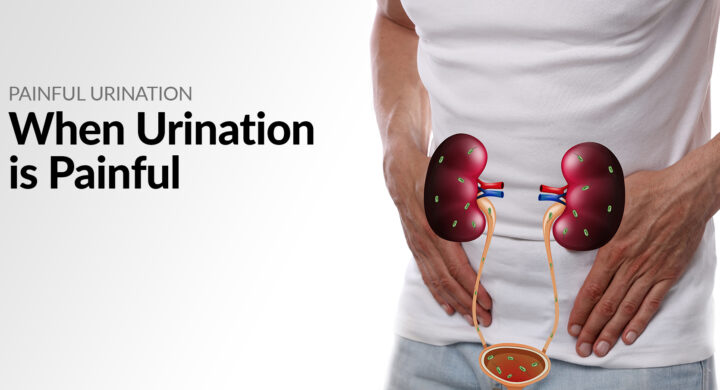 Painful Urination - When urination is painful